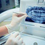 La creación de mandíbulas virtuales clave en el éxito de los implantes dentales