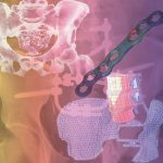IBV investiga en nuevas metodologías para el diseño, fabricación, evaluación y certificación de productos sanitarios