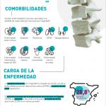 La osteporosis, una enfermedad que también afecta a los hombres y más prevalente en España que en el resto de la Unión Europea